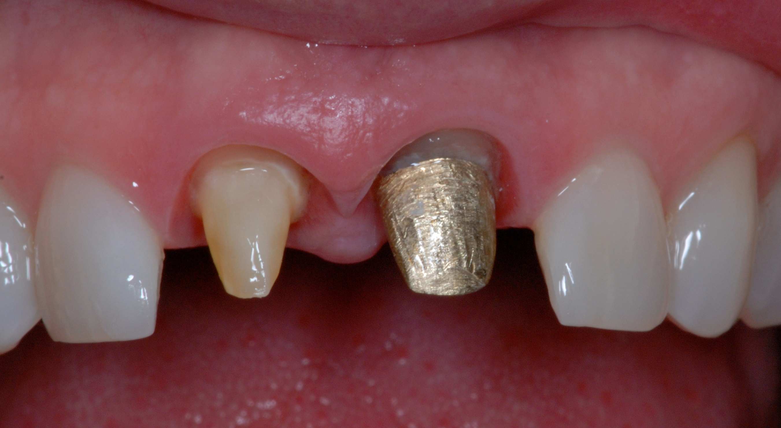 Re Treatment Involving Splinted Teeth Rick Glassman Dds